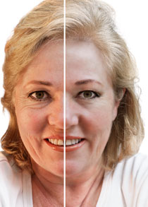 Before and after from the botox website. Looks pretty good right?