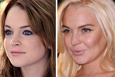 lindsay-lohan-before-after-2.jpg
