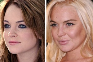 lindsay-lohan-before-after-2